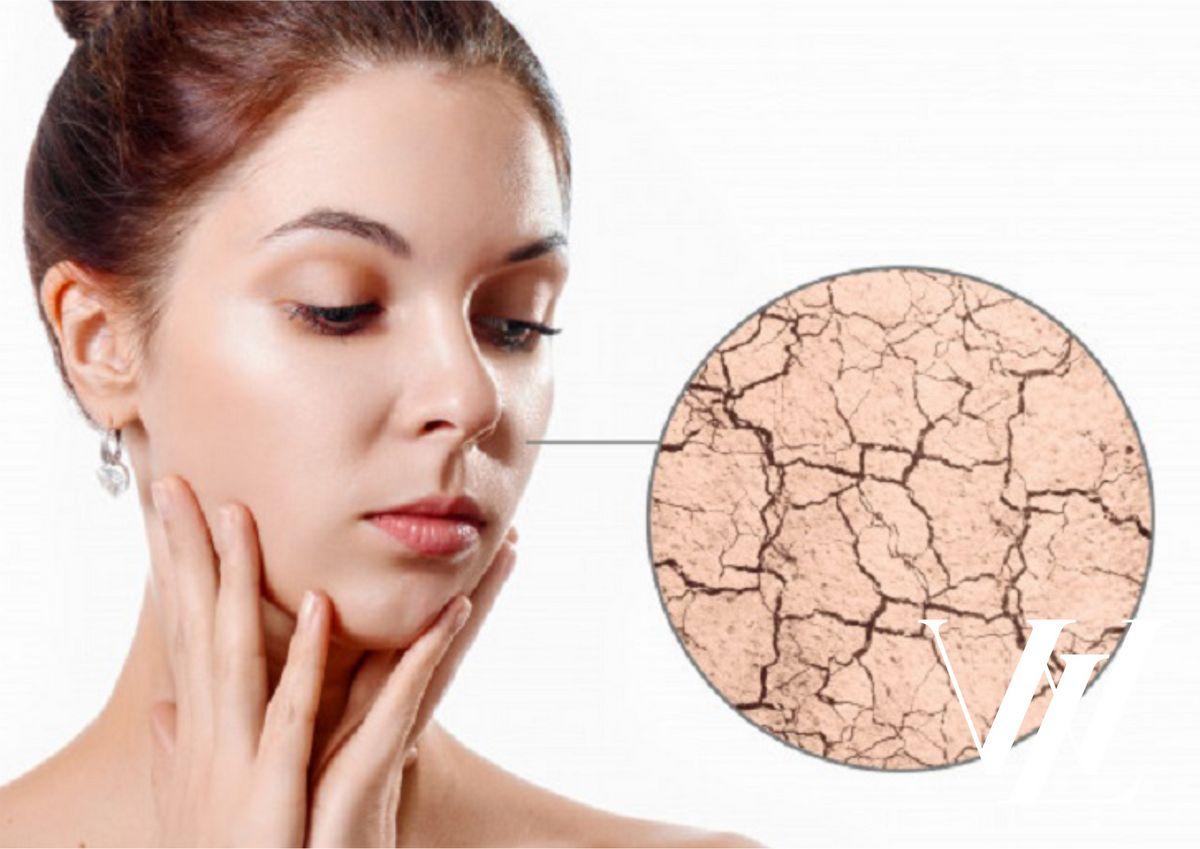 Сухость кожи и шелушения - дефицит воды в организме