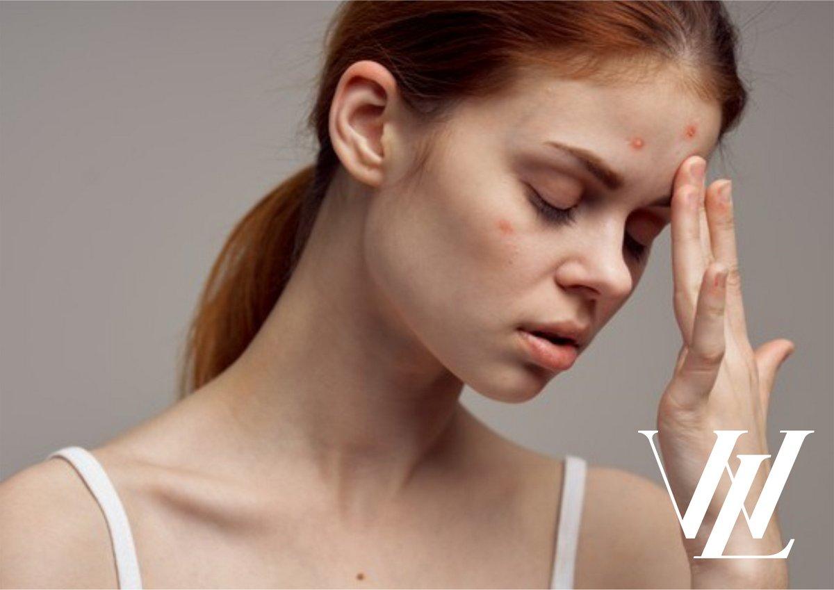 Топ-7 привычек, которые губят твою красоту и здоровье
