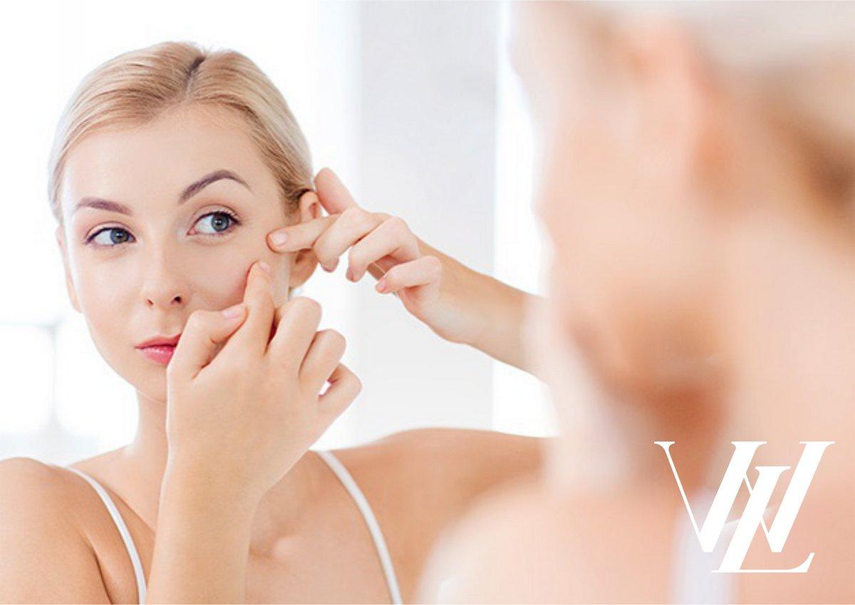 Как избавиться от шрамов после акне: список эффективных косметических процедур