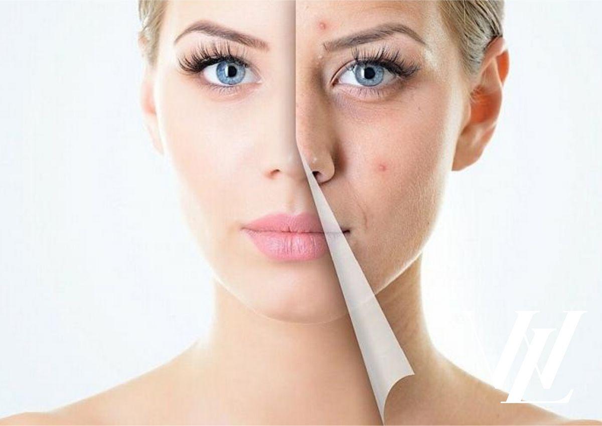 Вы сможете быстро убрать подкожные прыщи, если добавите в свое ежедневных уход эти эффективные маски для лица!