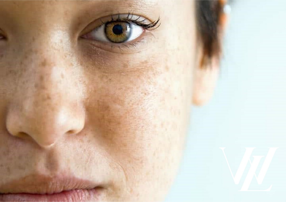 Как убрать пигментные пятна на лице быстро? На помощь придет комплексный домашний уход!